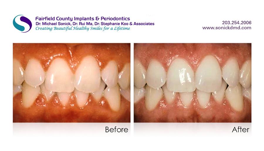 periodontal-2